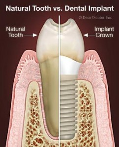natural-tooth